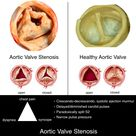 Aortic Valve Stenosis vs. Healthy Aortic Valve Rosh Review