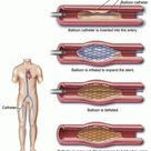 This remarkable device is an intraluminal coronary artery stent.