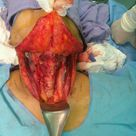 Thyroid -Surgery to remove thyroids - known as a thyroidectomy.