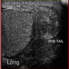 Chronic epididymitis presents differently, it shows enlargement and areas that are affected will be