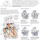Explanatory graphic describing several birth defects that cause heart murmurs.