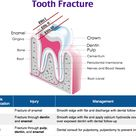 Tooth Fracture