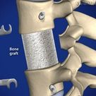 Spine Surgery : Bone Graft for Spine Fusion