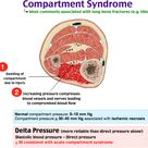 Compartment Syndrome results in insufficient blood supply to tissue within that space.