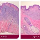Case A represents the nevoid melanoma and Case B represents a compound nevus.