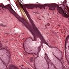Last week's #MysteryAnatomy structure was the sebaceous gland. Sebaceous glands are microscopic exoc