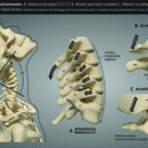 Cervical Spine Instability Getting a Correct Diagnosis with Digital Motion X-Ray and Restorative Tre