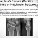 Chauffeur's fracture