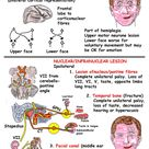Instant Anatomy - Head and Neck - Nerves - Cranial - VII lesions