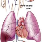 Pulmonary Embolism. Most are caused by a blood clot (loosened thrombus), but could be of different o