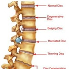 Spine conditions