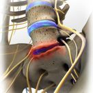 Degenerative Disc Disease- the pain associated with degenerative disc disease is thought to stem fro