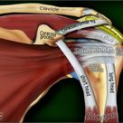Anterior graphic of the shoulder. The tendon of the subscapularis muscle attaches both to the lesser