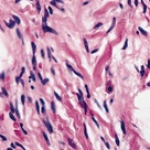 Spindle cells and ropey collagen- found in spindle cell lipomas