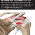 Shoulder Joint Instability