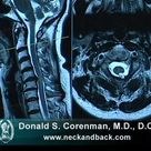 How to Read a MRI of Cervical Stenosis with Spinal Cord Injury   Spine Surgeon in Colorado