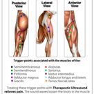 Product ad for heated hip wrap, but still informative on TPs. Human body trigger points result from