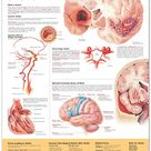 Understanding Stroke Chart (Click Photo to Read More!)
