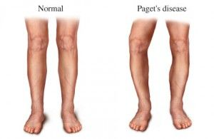 Paget's Disease (of bone). May be genetic, or could be a viral infection.
