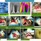 tapered effect implant