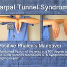 Phalen's maneuver for assessing Carpal Tunnel Syndrome. Phalen's maneuver produces paresthesia of th