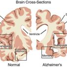 "Normal brain v Alzheimer's.   ""The brain tissue of a patient with Alzheimer?s disease typically"