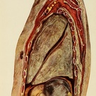 Sagittal cross section from 'Surgery of the lung', C. Garre and H. Quincke, 1913.