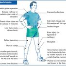 Some common sports injuries.