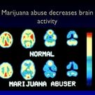 Marijuana is the most commonly abused drug in the United States. About 2 in 5 Americans report smoki