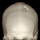 3D CT scan reconstruction of depressed skull fracture (Radiopedia.org)