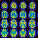 PET scans comparing Alzheimer's sufferer's brain with healthy brain