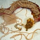 Ascariasis is an infection of the small intestine caused by Ascaris lumbricoides.