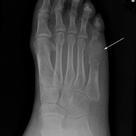 Gout - arthritis with increased uric acid.