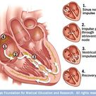 A normal heartbeat begins when a tiny cluster of cells called the sinus node sends an electrical sig