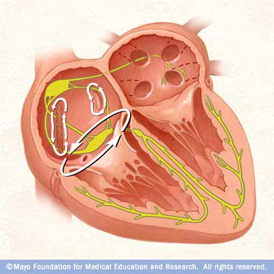 Atrial flutter is similar to atrial fibrillation but characterized by more-organized and more-rhythm