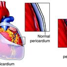What is pericarditis? The pericardium is a thin sac-like tissue that covers the outer surface of the