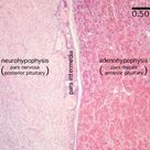 pituitary histology labeled | Pituitary Histology - Pituitary gland (labels) - histology slide -