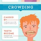A close up look at common dental issues