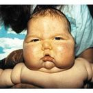 Image detail for Cushing's disease due to prednisone Cushing's Syndrome
