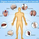 Sarcoidosis Symptoms, Treatment, Stages, Facts & Figures Sarcoidosis knows no cause or cure &