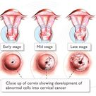 Cervical cancer occurs when the cells in the cervix grow abnormally or out of control. The exact cau