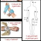 How To Control Bleeding. Strange site to pin this from as a nurse but it is exactly what to do for a