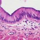 Simple Columnar Epithelium; single layer of cells cells are roughly rectangular-shaped in section nu