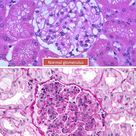 Post-streptococcal glomerulonephritis is a common complication of group A streptococcal infection