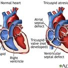 Tricuspid [valve] Atresia - when the tricuspid valve is underdeveloped and sealed.