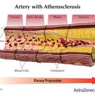 Of the many forms of heart disease, atherosclerosis, also known as blocked arteries, is the most