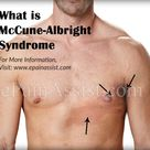 What is McCune-Albright Syndrome?