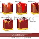 The process of wound healing. Illustration showing skin after injury, appears blood, then blood clot