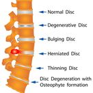 Spinal Stenosis a closer look