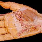 Removal of the skin and the layer of tough tissue beneath it, the palmar fascia, reveals a complex a